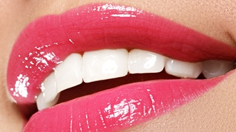 close-up of beautiful smile after cosmetic dentistry in Bonita Springs