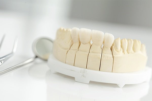 Close up of dental crowns