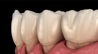 Model of gums receding and exposing tooth roots due to gum disease
