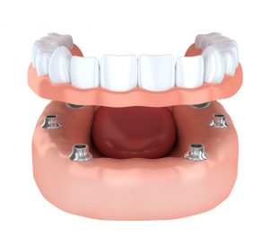 How many teeth do you need replaced by dental implants in Bonita Springs?