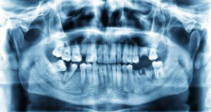 x-ray with missing teeth