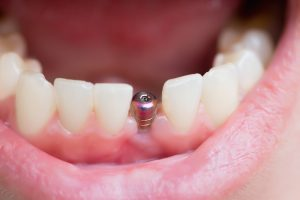 dental implant close-up