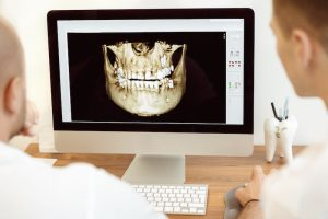 dentists looking at digital x-ray