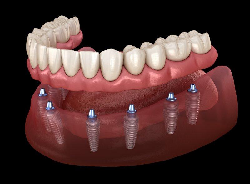 implant dentures in Bonita Springs